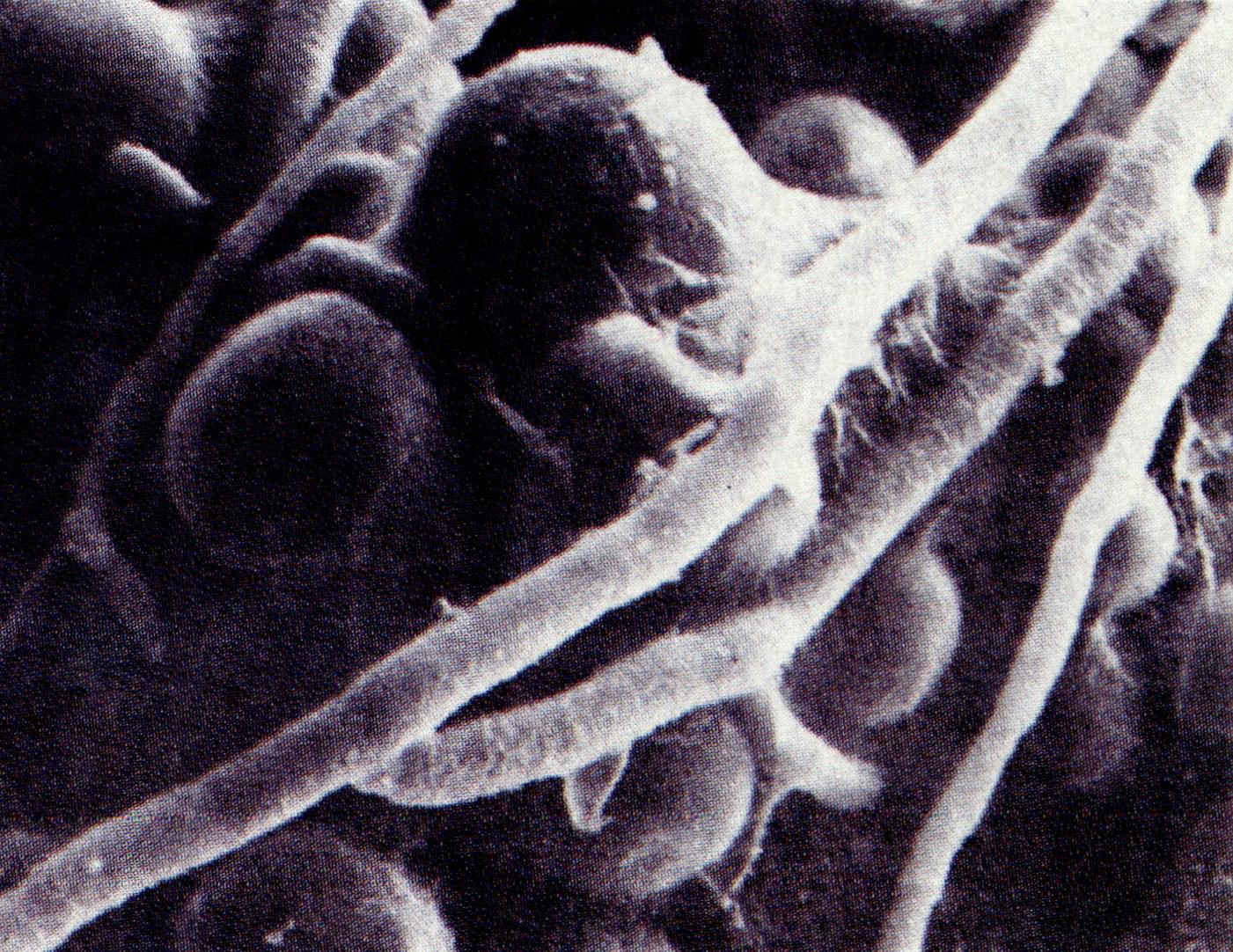 내생포자(endospore)