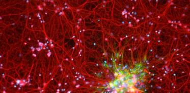 [사이언스타임즈] 손상된 뇌세포 '치료 길' 열렸다