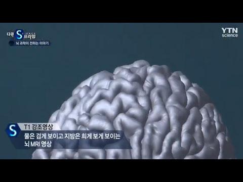 [사이언스TV] 뇌 과학이 전하는 이야기