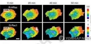 [사이언스타임즈] 뇌에 전이하는 유방암 원인 밝혀