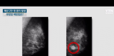 [사이언스TV] '국내 여성암 발병 2위' 유방암, 제대로 알고 예방하기!