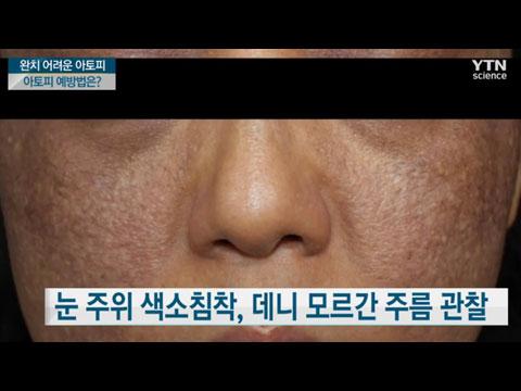 [사이언스TV] 완치 힘든 만성 재발성 습진 질환, 아토피