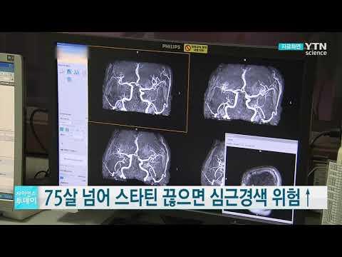 [사이언스TV] 75살 넘어 스타틴 끊으면 심근경색 위험↑
