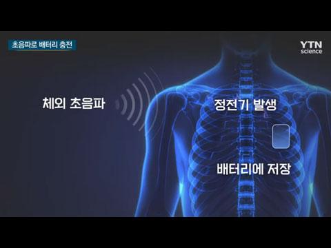 [사이언스TV] 내 몸이 발전기, 초음파로 정전기 일으켜 배터리 충전