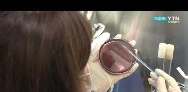 [사이언스TV] 살모넬라 식중독 8∼9월 집중 발생 충분히 끓여야