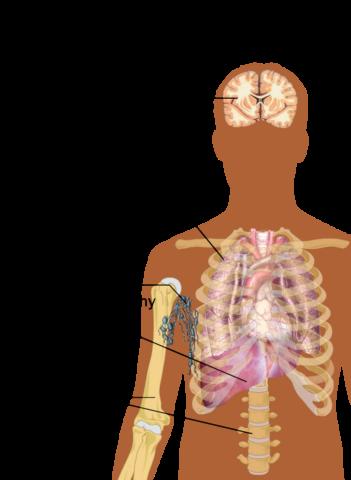 [사이언즈타임즈] 물리학과 생물학 융합으로 암 속성 파헤친다