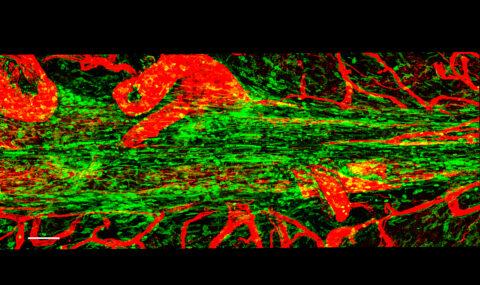[사이언즈타임즈] 장 면역세포가 왜 뇌에서 나와?
